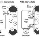 simvastatin mechanism of action
