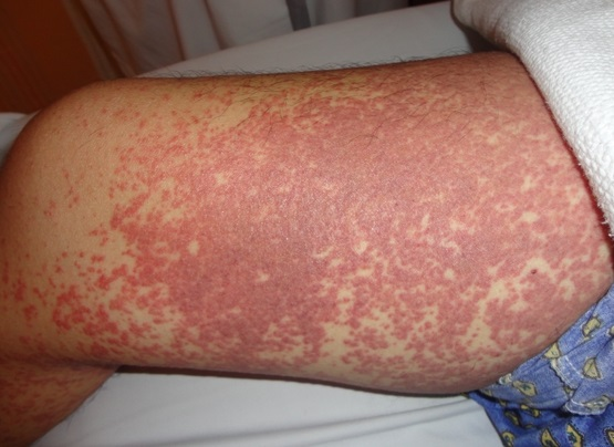Patient with toxic epidermal necrolysis