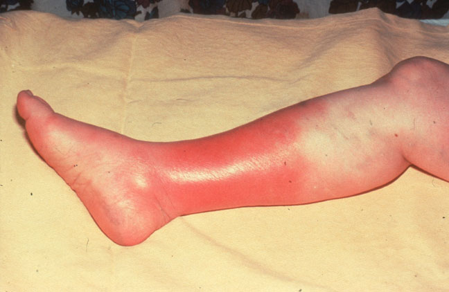 Is cellulitis of the leg dangerous
