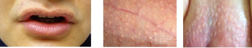 Fordyce granules or Sebaceous Prominence