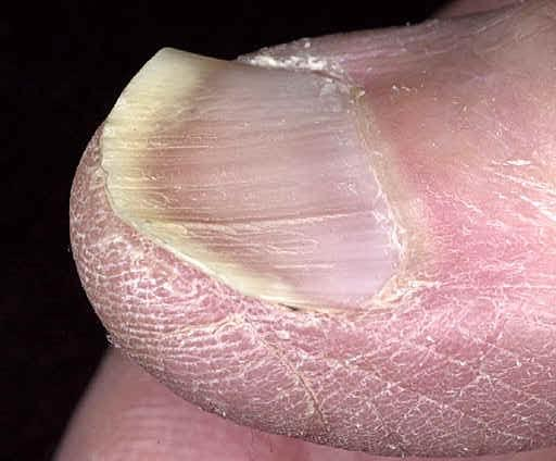 koilonychia nails photos