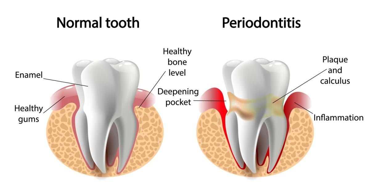 What does pyria gum disease look like