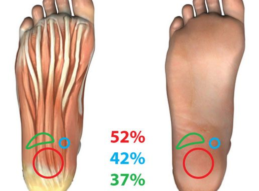 Where does your foot hurt with plantar fasciitis?