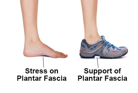 Wearing Minimalist Shoes When You Have Plantar Fasciitis
