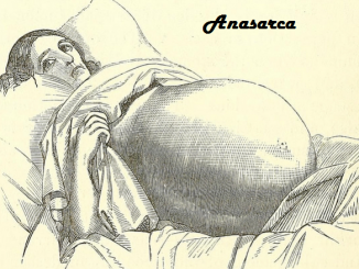 Anasarca - Definition, Pathophysiology, Pictures, Causes, Treatment