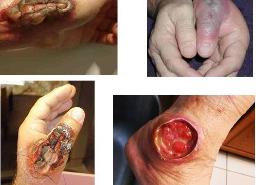 Camel Spider Bite: Pictures, Facts, Symptoms, Prevention & Treatment