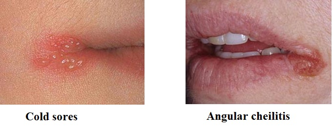 difference between angular cheilitis and cold sore