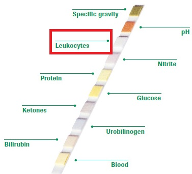 what does leukocyte esterase positive mean