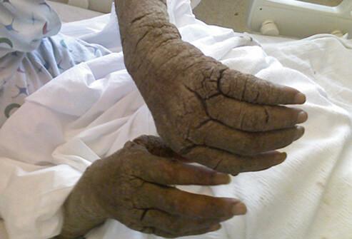 scabies rash pictures humans