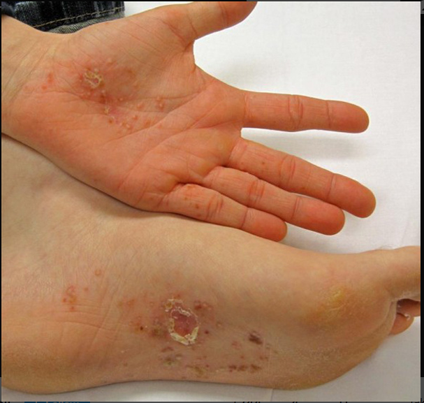 Dyshidrotic eczema (Dyshidrosis): Symptoms, Causes ...
