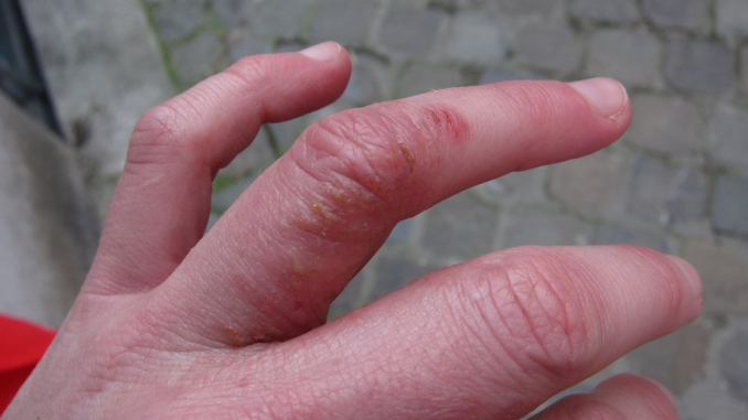 Dyshidrotic Eczema: Overview, Causes, Diagnosis & Pictures
