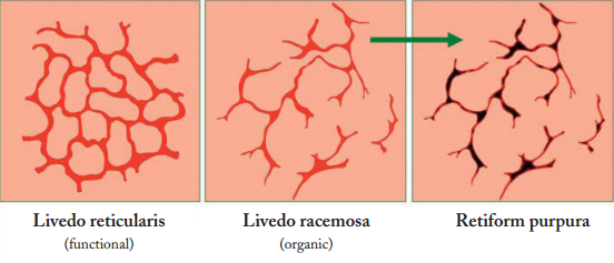 difference between livedo reticularis livedo racemosa