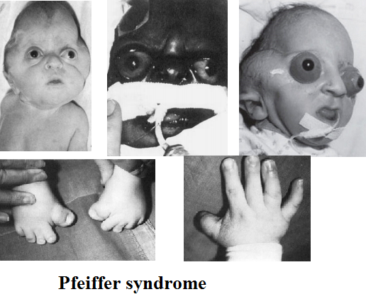pfeiffer syndrome type 2 and 3 symptoms causes treatments