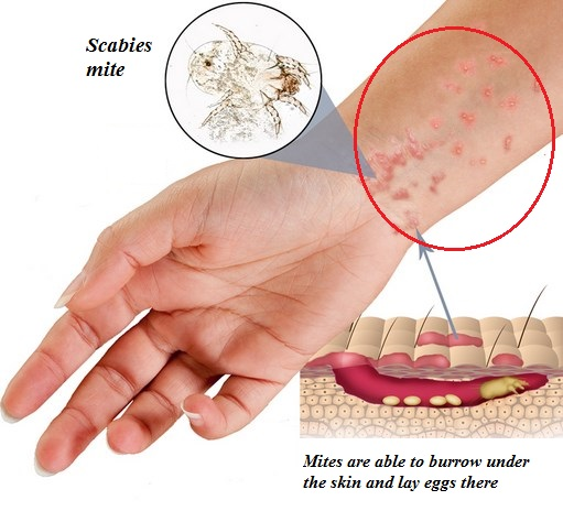 scabies rash pictures: How long are you contagious with scabies?