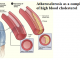 What is considered a dangerous level of cholesterol? What are the risks of high cholesterol?