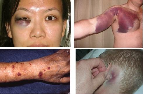 Ecchymosis on eyelid, hand, arm., ear, foot