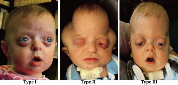 pfeiffer syndrome type 1, 2 and 3 images