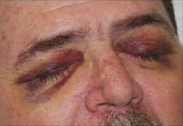 Raccoon eye sign trauma or Blepharohematoma
