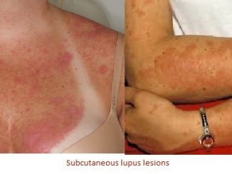 Lupus Symptoms, Rash, and Treatment