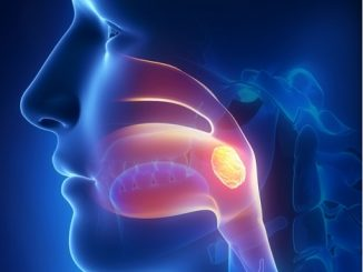 how to get rid of livedo reticularis