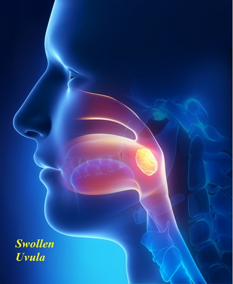 Swollen Uvula Causes Symptoms Pictures Treatment And