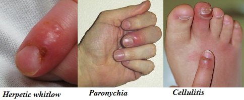 Difference between herpetic whitlow, paronychia, and cellulitis