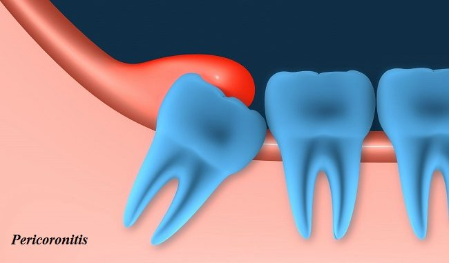 Pericoronitis - Definition, Reasons, Sign and Symptoms, Contagious, Pain management and Prevention