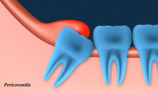 Why is my gum swollen around my wisdom tooth?