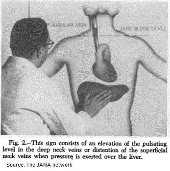 jugular venous pulse vs carotid pulse