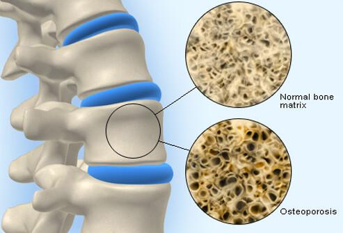 calcitonin nasal spray for bone pain