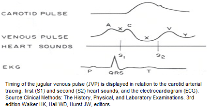 Venous Pulse - Cardiology, diagnosis and treatment of heart diseases