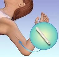 How big is the nexplanon implant