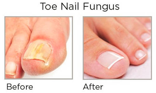 A toenail fungal infection before and after taking Fungus Shield Plus image photo picture
