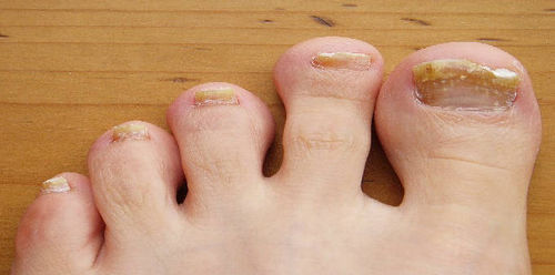 A toenail fungal infection is one of the common fungal infections in the world image photo picture